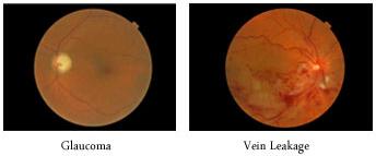 retinalbottom