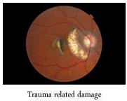 retinalsinglepic