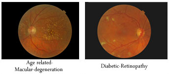retinaltop